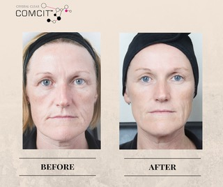 Crystal Clear COMCIT Before And After Version 1
